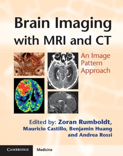 9780521119443: Brain Imaging with MRI and CT: An Image Pattern Approach (Cambridge Medicine (Hardcover))