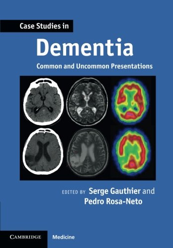 9780521188302: Case Studies in Dementia: Common and Uncommon Presentations (Case Studies in Neurology)