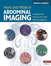 Pearls and Pitfalls in Abdominal Imaging: Pseudotumors, Variants and Other Difficult Diagnoses (...