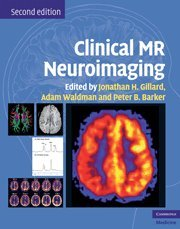 9780521515634: Clinical MR Neuroimaging: Physiological and Functional Techniques