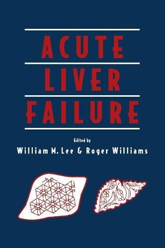 9780521553810: Acute Liver Failure