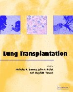 9780521651110: Lung Transplantation (Postgraduate Medical Science)