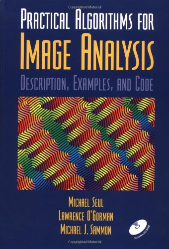 9780521660655: Practical Algorithms for Image Analysis with CD-ROM: Description, Examples, and Code