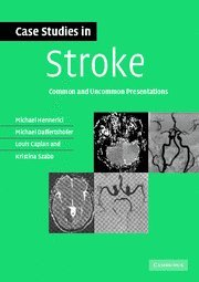 9780521673679: Case Studies in Stroke: Common and Uncommon Presentations (Case Studies in Neurology)