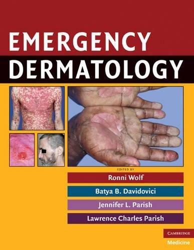 9780521717335: Emergency Dermatology (Cambridge Medicine (Hardcover))