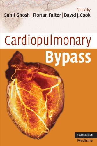 9780521721998: Cardiopulmonary Bypass (Cambridge Clinical Guides)