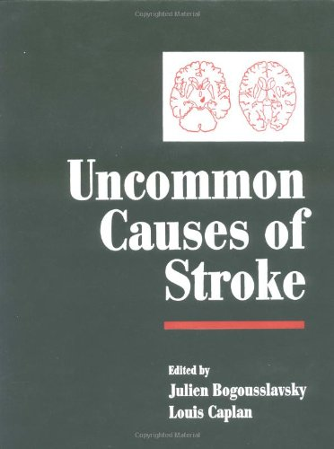 9780521771450: Uncommon Causes of Stroke