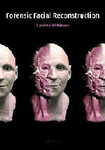 9780521820035: Forensic Facial Reconstruction