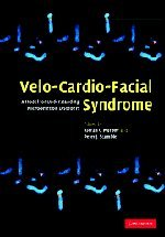 Velo Cardo Facial Syndrome : A Model For Understanding Microdeletion Disorders
