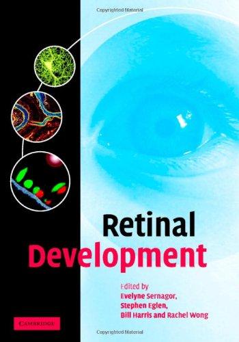9780521837989: Retinal Development