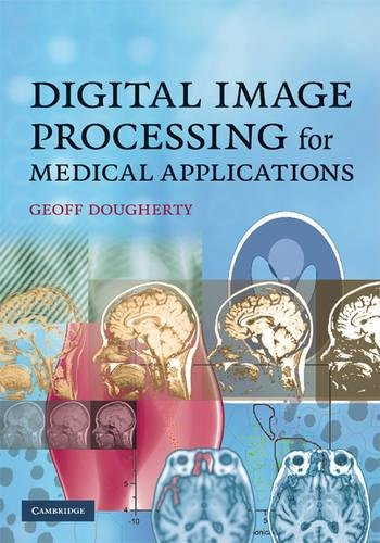 9780521860857: Digital Image Processing for Medical Applications