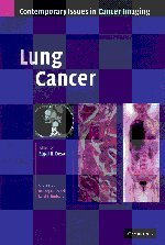 Lung Cancer (Contemporary Issues in Cancer Imaging): Editor-Sujal R. Desai