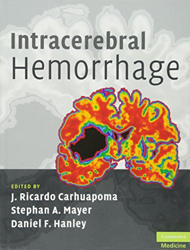 9780521873314: Intracerebral Hemorrhage