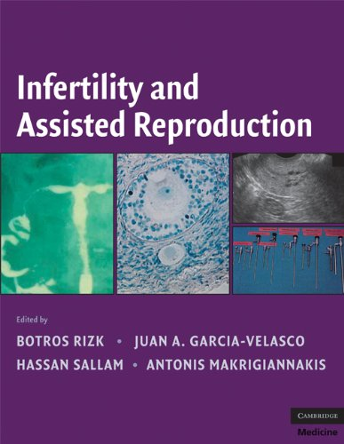9780521873796: Infertility and Assisted Reproduction