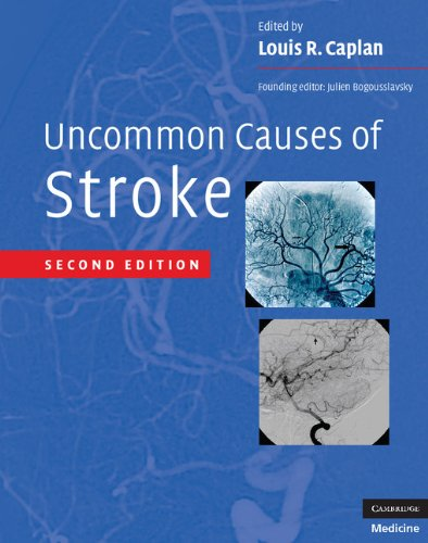9780521874373: Uncommon Causes of Stroke