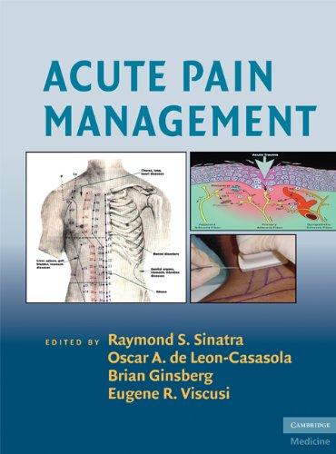 9780521874915: Acute Pain Management (Cambridge Medicine (Hardcover))