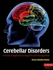 9780521878135: Cerebellar Disorders: A Practical Approach to Diagnosis and Management