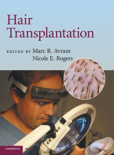 9780521879675: Hair Transplantation