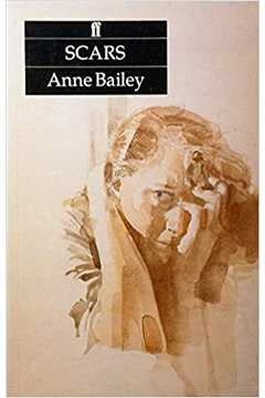 Scars (Childrens Paperbacks Series): Anne Bailey