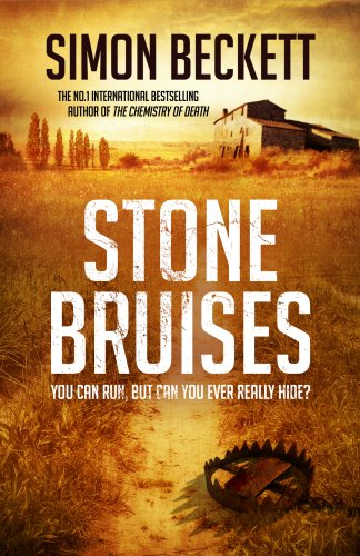 9780593073292: Stone Bruises