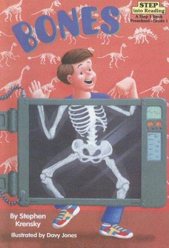 9780606169769: Bones