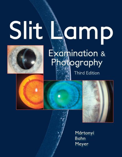 9780615165196: Slit Lamp: Examination and Photography