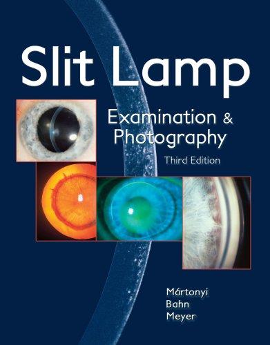 Slit Lamp Examination & Photography Revised &: Csaba Martonyi