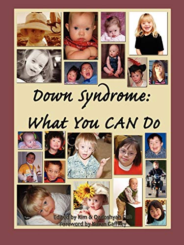 9780615259161: Down Syndrome: What You CAN Do