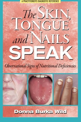 9780615601212: The Skin, Tongue and Nails Speak: Observational Signs of Nutritional Deficiencies