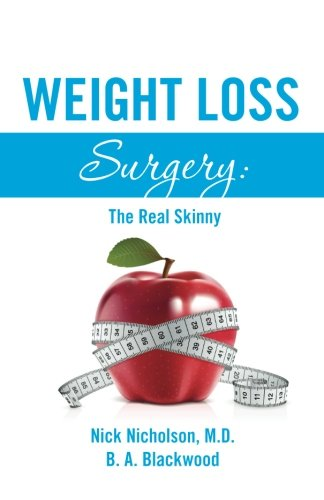 9780615887395: Weight Loss Surgery: The Real Skinny