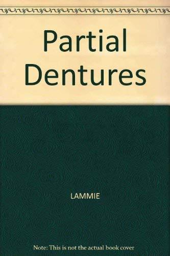 9780632015986: Partial Dentures
