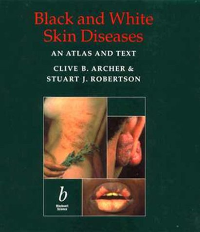 9780632025299: Black and White Skin Diseases: An Atlas and Text
