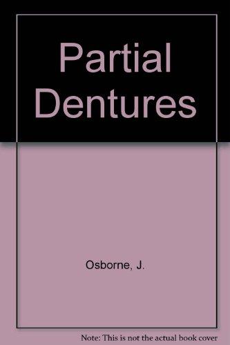 9780632032006: Partial Dentures