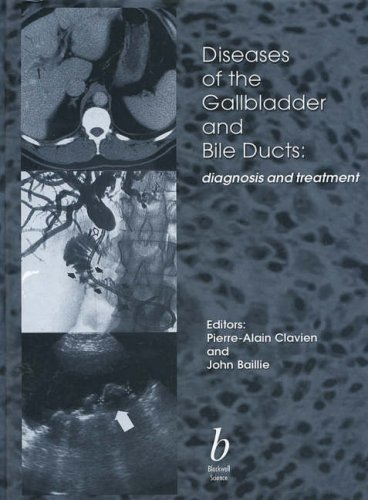9780632044788: Diseases of the Gallbladder and Bile Ducts: Diagnosis and Treatment