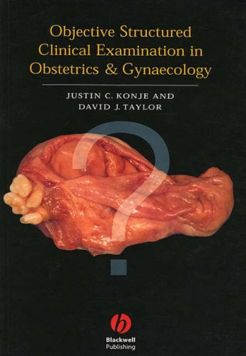 9780632047642: Osce in Obstetrics and Gynecology