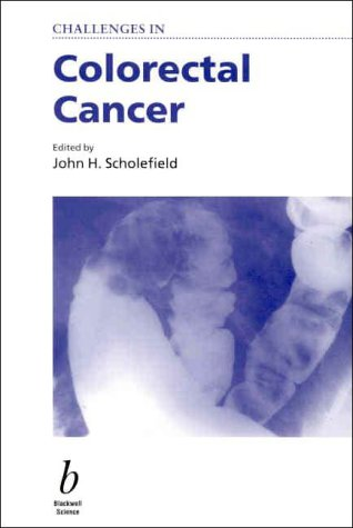 9780632051168: Challenges in Colorectal Cancer