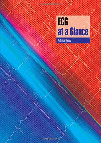 9780632054053: ECG at a Glance