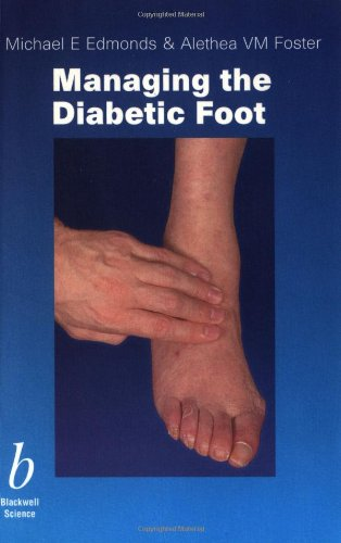 9780632055838: Managing the Diabetic Foot (1st Edition)