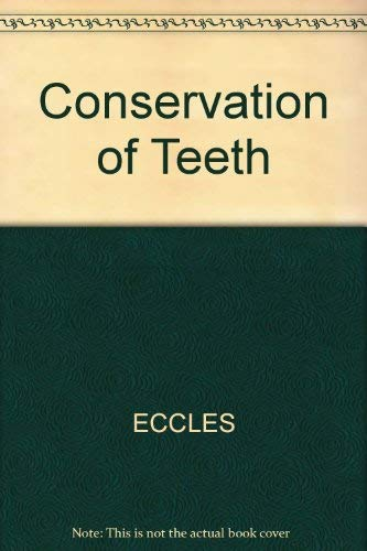 9780632095506: Conservation of Teeth