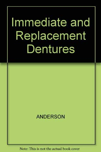 9780632095605: Immediate and Replacement Dentures