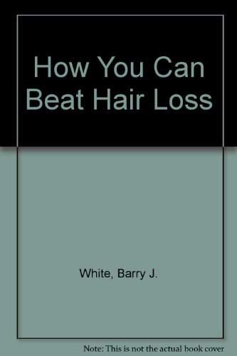 How You Can Beat Hair Loss: Barry J. White;