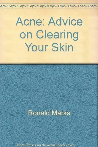 9780668056595: Acne: Advice on Clearing Your Skin by Ronald Marks