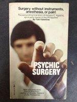 Psychic Surgery: Tom valentine