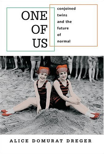 9780674012943: One of Us: Conjoined Twins and the Future of Normal