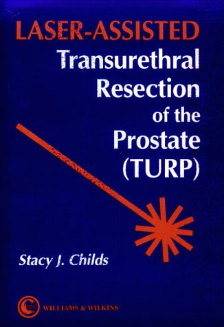 Laser-Assisted Transurethral Resection of the Prostate (Turp): Childs, Stacy J., M.D.