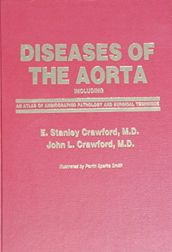 9780683022353: Diseases of the Aorta: An Atlas of Angiographic Pathology and Surgical Treatment