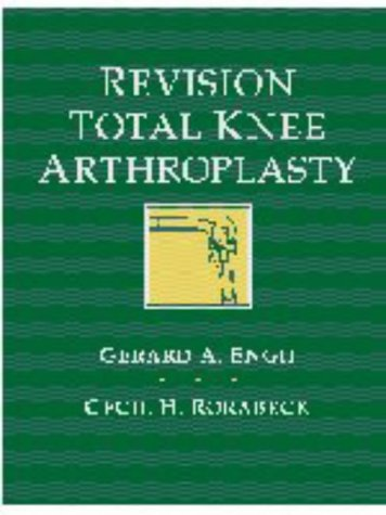 9780683028270: Revision Total Knee Arthroplasty