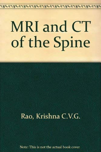 9780683071337: MRI and CT of the Spine