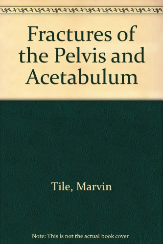 Fractures of the Pelvis and Acetabulum: Tile, Marvin
