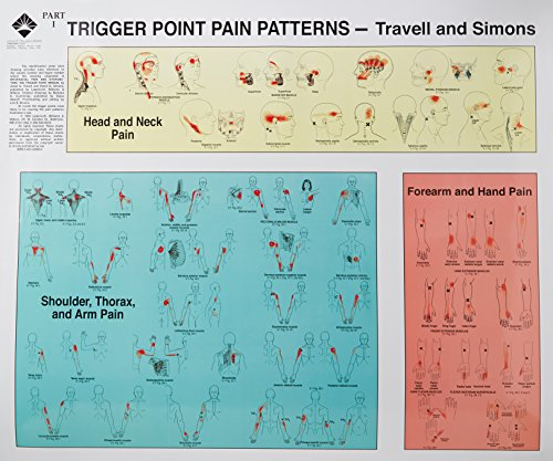 Trigger Points of Pain: Wall Charts (Set: Janet G Travell